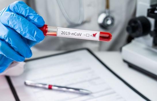 IKSHPK: 19 raste të reja me koronavirus dhe 24 të shëruar në Kosovë
