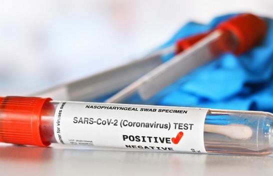 Pesë raste të reja me koronavirus dhe tre të shëruar në Kosovë