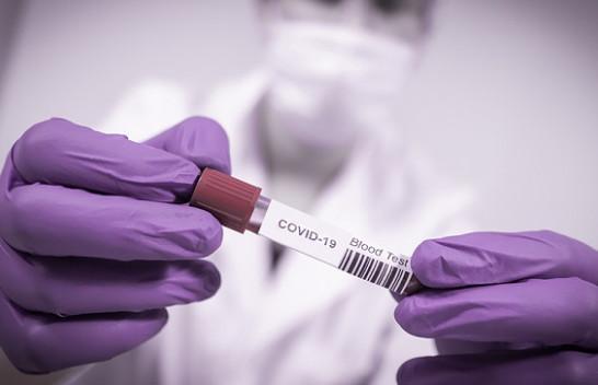 61 të shëruar dhe 62 raste të reja me koronavirus në Kosovë
