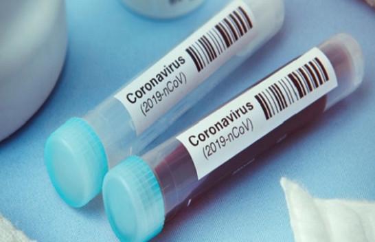 A do të fillojë Kosova mjekimin e pacientëve me gjakun e të shëruarve nga COVID-19?