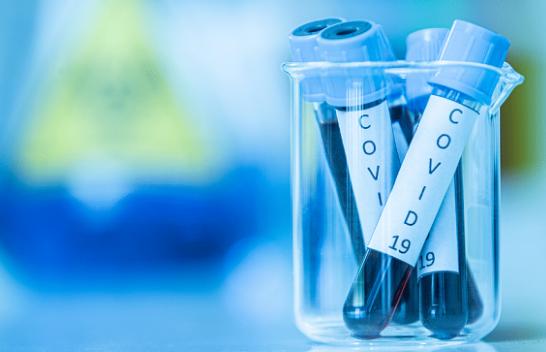 Rritje rekord e të infektuarve me koronavirus në Shqipëri